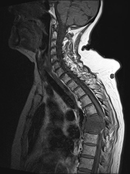 Spinal infection pre-op